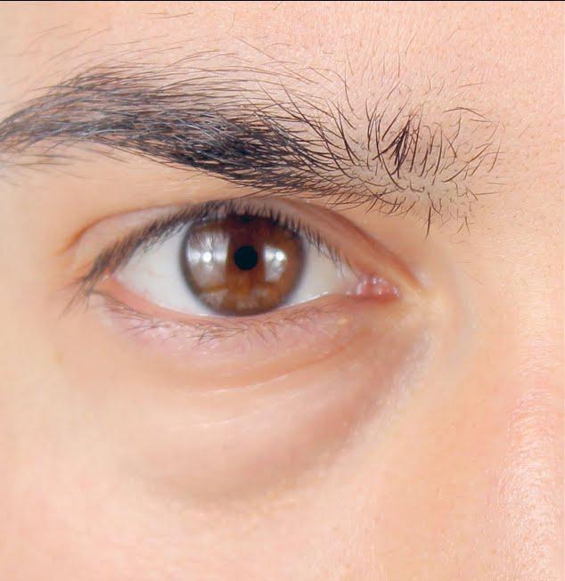 ojos antes